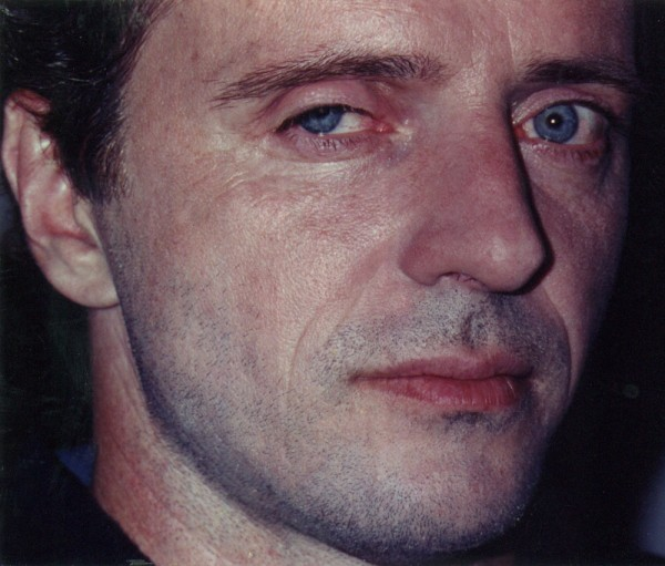 Aidan Quinn with eyelid prosthetic