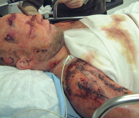 Bomb explosion victim with edema prosthetics and burns